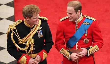 哈里王子脱发